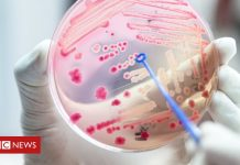 'Alarming' one in five deaths due to sepsis